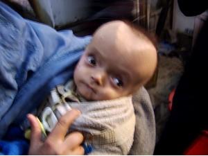 Afganistanska beba sa deformacijama od zagađenosti uranijumom